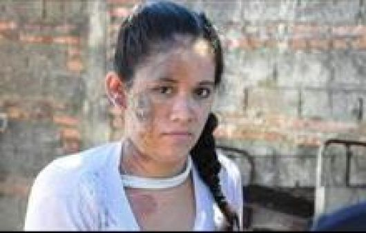 El novio de la joven quemada afirmó que otra mujer la atacó por celos