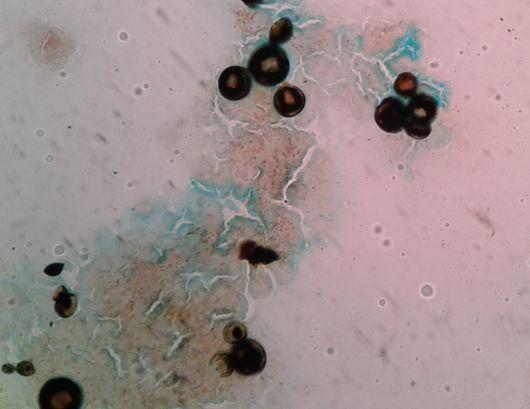 Científicos activan alarma por el resurgimiento de una enfermedad en el NEA